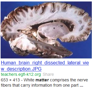 human brain white gray matter